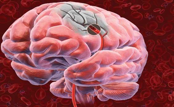 Así será el tratamiento del derrame cerebral en el futuro