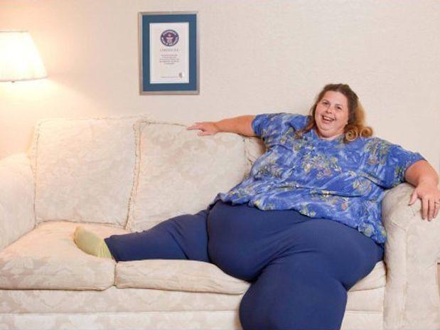 ¿Se puede erradicar del mundo el sobrepeso?