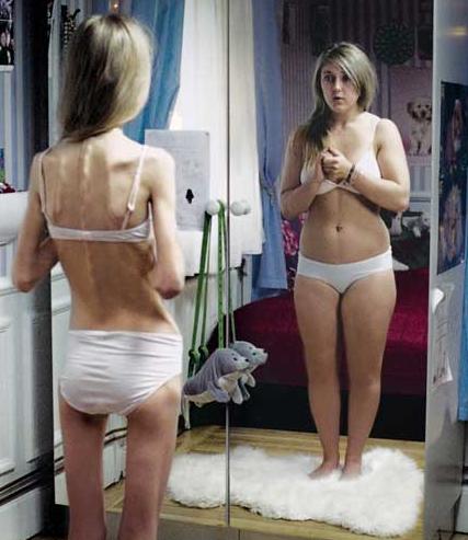 Video: una cirugía para tratar la bulimia y la anorexia