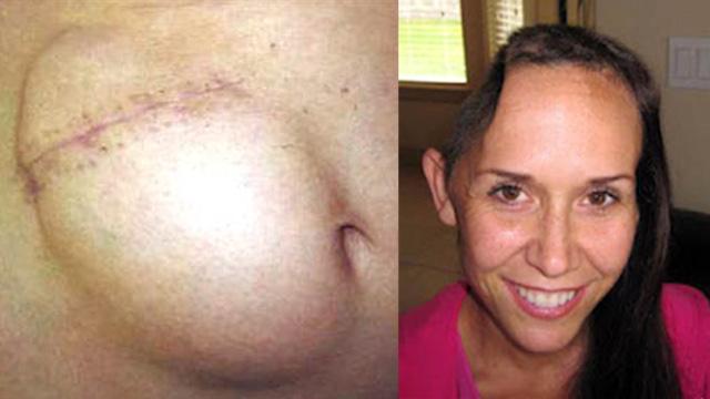 Salvó su vida porque le injertaron parte del cráneo en el abdomen - Fotos