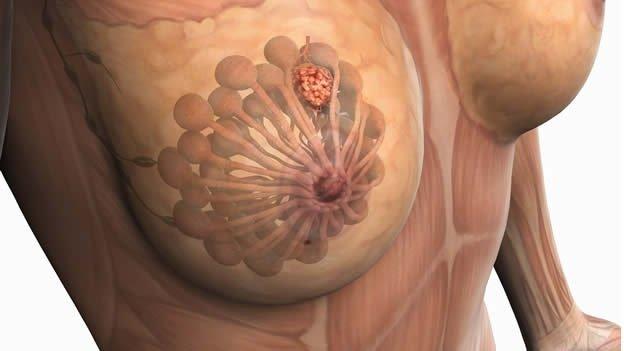 Cómo reducir el riesgo de cáncer de mama