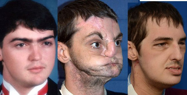 Foto: Así quedó luego del trasplante de cara