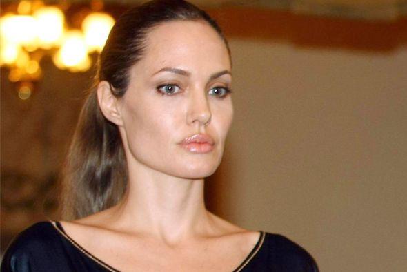 Los problemas de higiene de Angelina Jolie