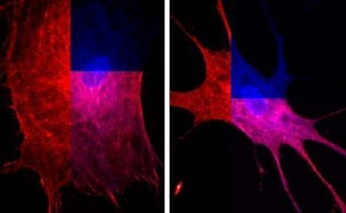 ¿Qué son las células madre? ¿De dónde proceden?