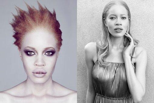 Fotos: Conoce a la primera modelo afroamericana albina