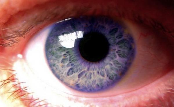 Los colores de ojos más extraños
