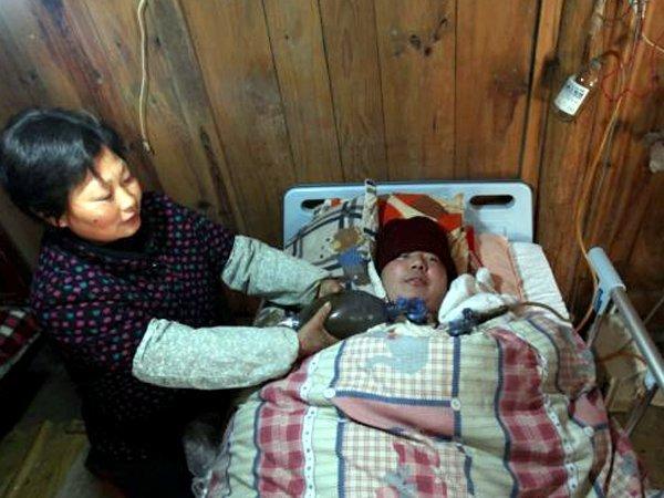 Joven sigue con vida gracias a un respirador casero accionado a mano