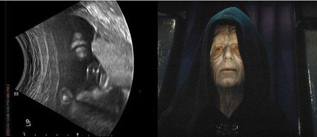 Foto: el emperador de La guerra de las galaxias aparece en ecografía
