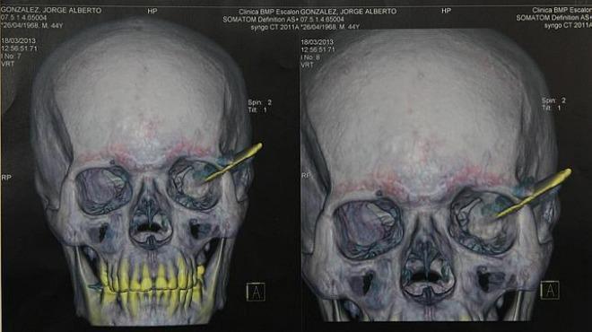 Insólito: Vivió más de diez años con un cuchillo en el cráneo