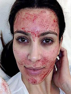 Extremo tratamiento de belleza de Kim Kardashian