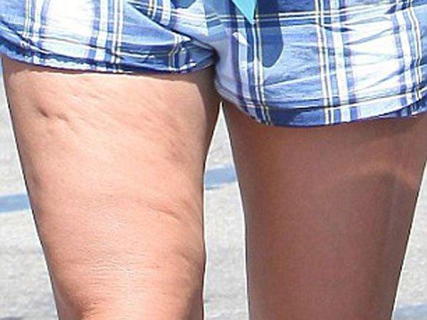 Fotos: Britney Spears con celulitis
