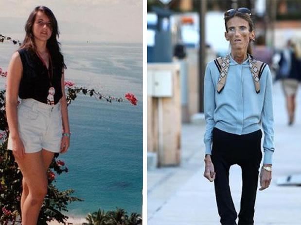 Estremecedor testimonio de una sobreviviente de Anorexia