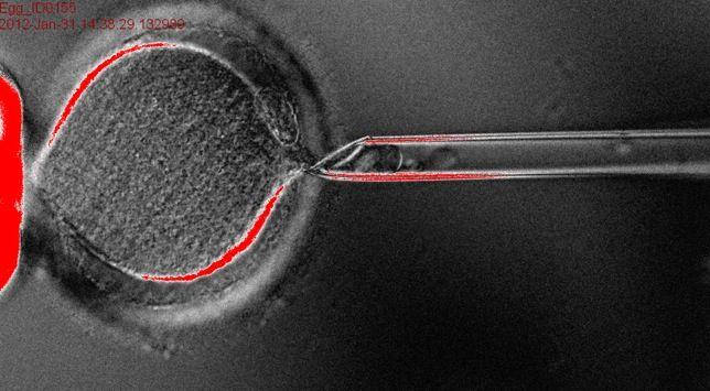 Crean células madre embrionarias humanas