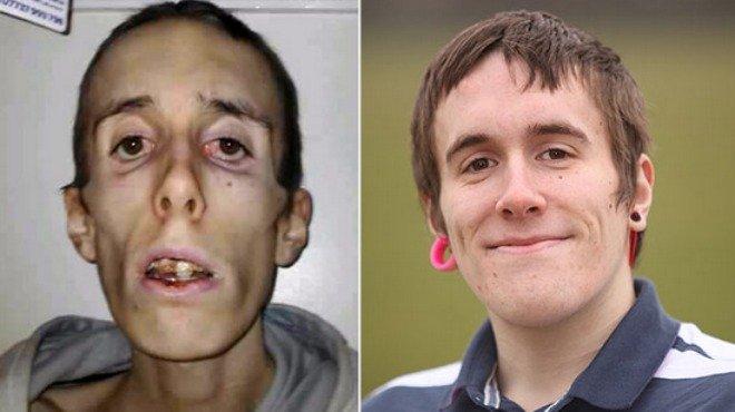 Joven con anorexia muere 20 minutos y revive - Fotos