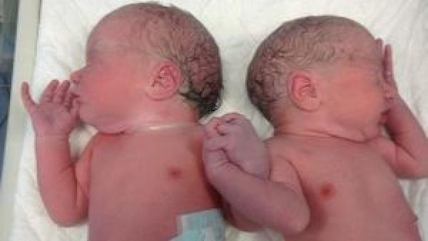 Foto de mellizos recién nacidos conmueve al mundo