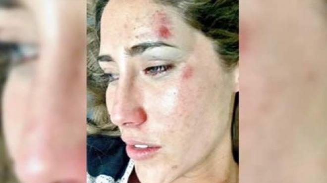 La novia de Jorge Kahwagi niega agresión del político