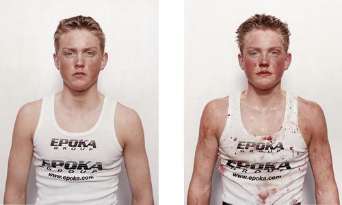 Fotos: así quedan los boxeadores luego de luchar