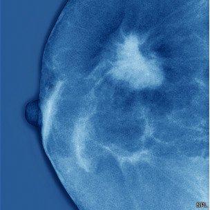 Solucionan el enigma sobre el origen del cáncer de mama