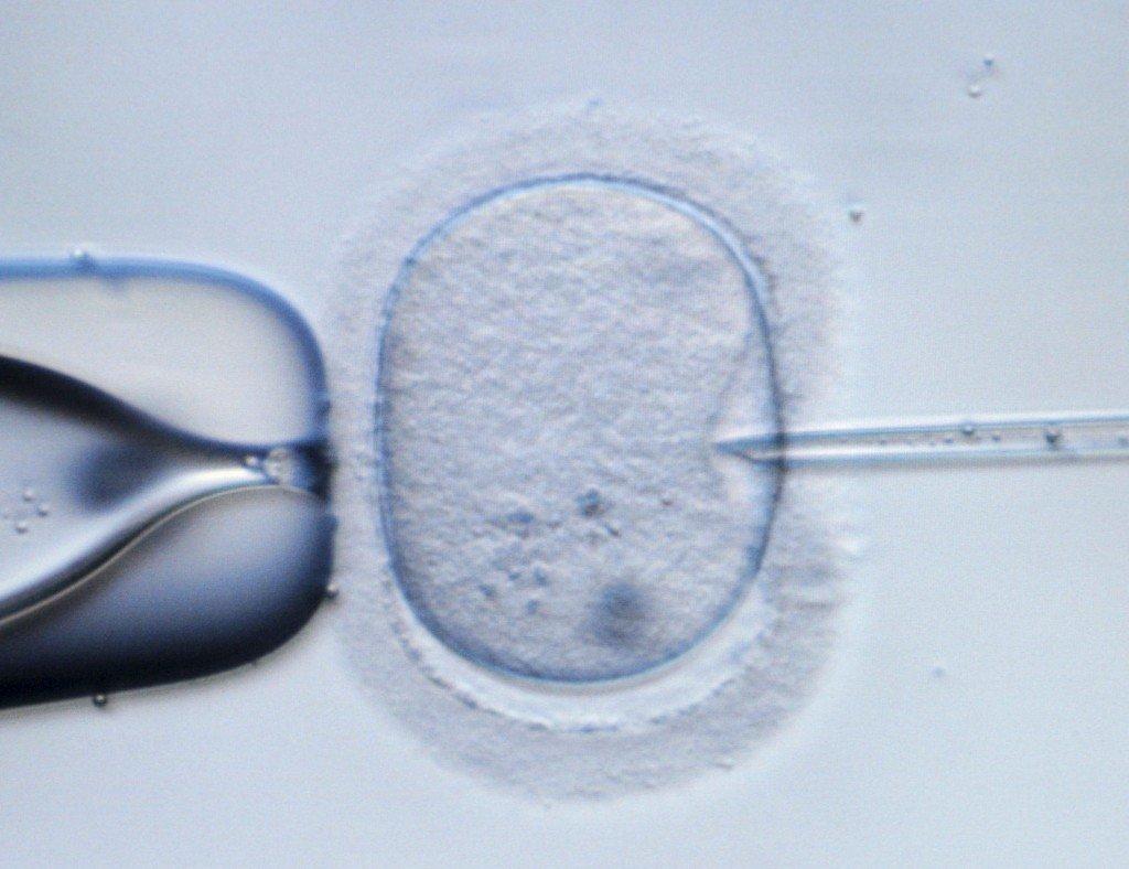 Nuevo y revolucionario tratamiento de fecundación in vitro