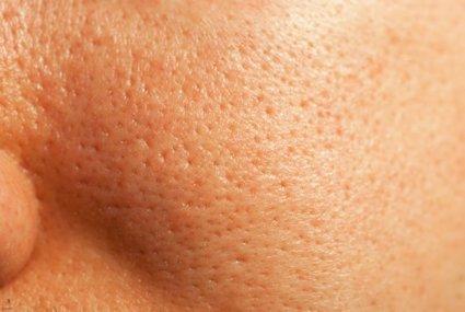 Tratamiento de la piel para combatir poros abiertos