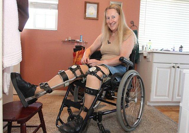 Insólito: Mujer se quiere operar para ser paralítica