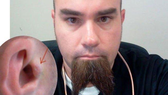 Insólito: se implanta audífonos en oídos para escuchar música todo el día