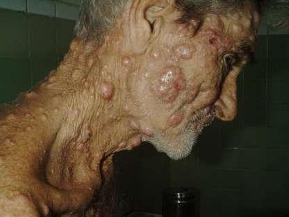 Por qué la reducción de casos de lepra en humanos