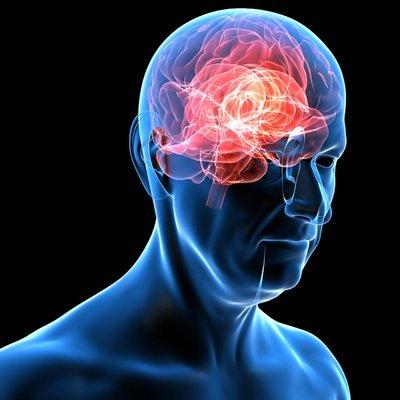 ¿Es posible un trasplante de cerebro?