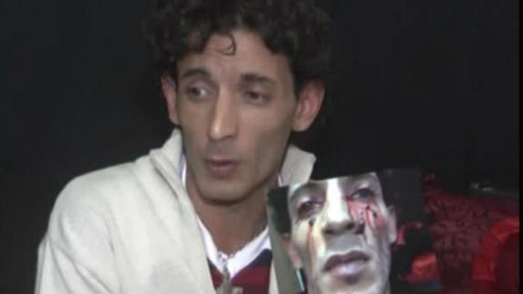 El increíble caso del hombre que llora sangre