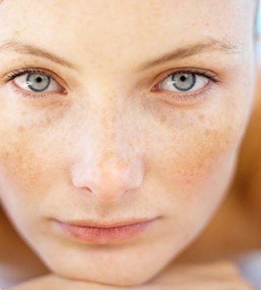 Tipos y tratamientos de manchas faciales