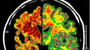 Hallan químico clave para tratar el Alzheimer